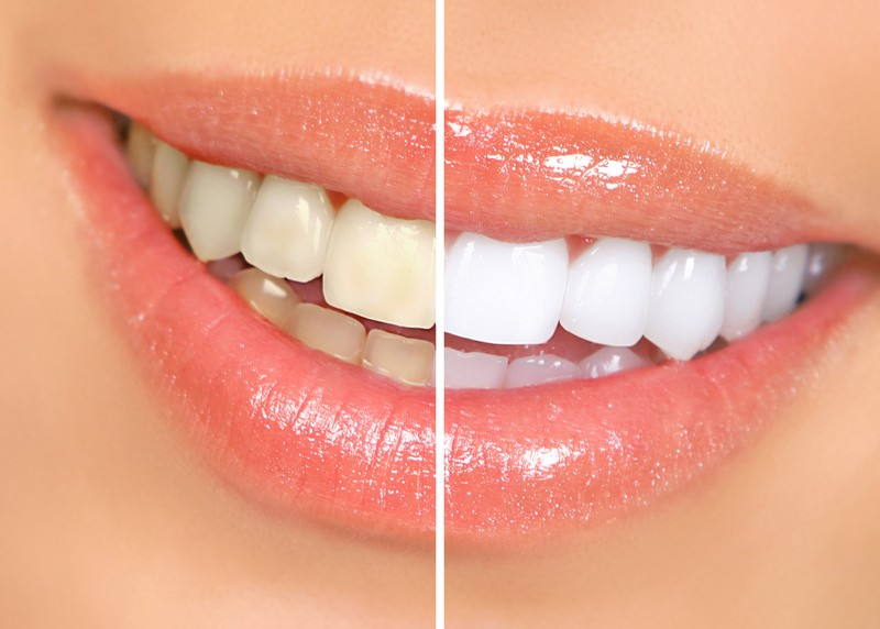 Teeth Whitening  La Mesa, CA